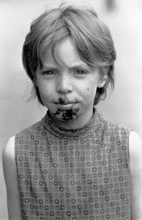 Child with impetigo caused by foul drainage, Winson Green, Birmingham  (1971)